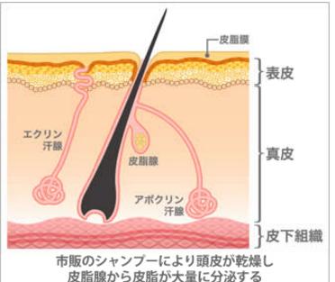 キュアラフィ シャンプー 頭皮乾燥 原因
