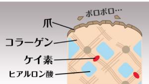 ツメリッチリペア ボロボロ 爪 原因