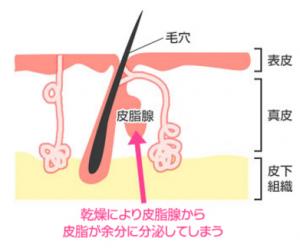 パピュレ(Papure) 胸元デコルテニキビ 原因 乾燥